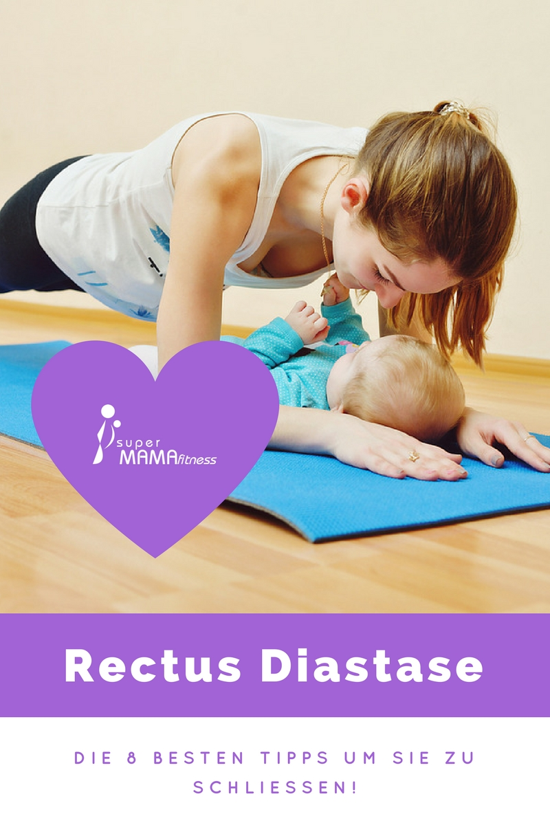 Eine Rectus Diastase ist nicht schön, aber man kann sie meißtens wieder schließen.
